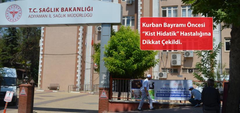 "Kapak-Kurban Bayrami Oncesi ""Kist Hidatik"" Hastaligina Dikkat Cekildi-5 Agustos 2019.png"