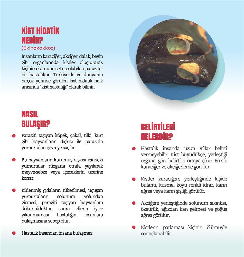 Kist Hidatik Broşür 2.jpg