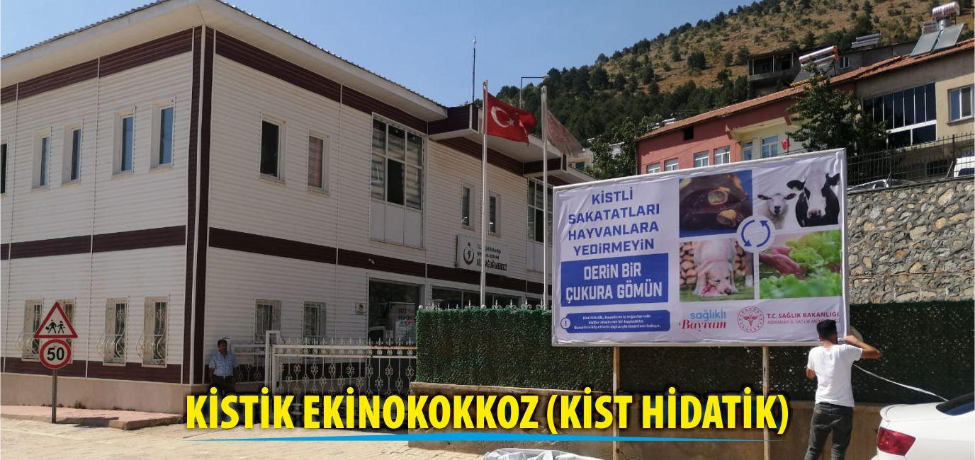 Kapak_Kistik Ekinokokkoz (Kist Hidatik).jpg