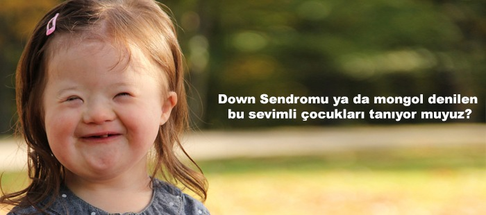 Down Sendromu Yada Mongol Denilen Bu Sevimli Çocukları Tanıyormuyuz?